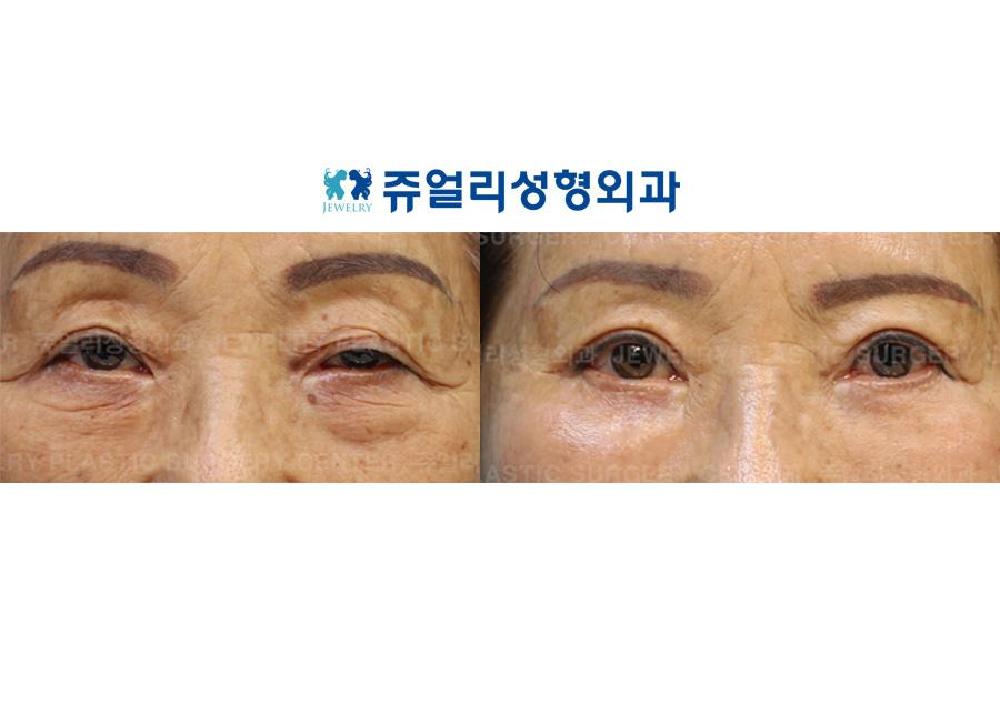 노인성 안검하수+하안검