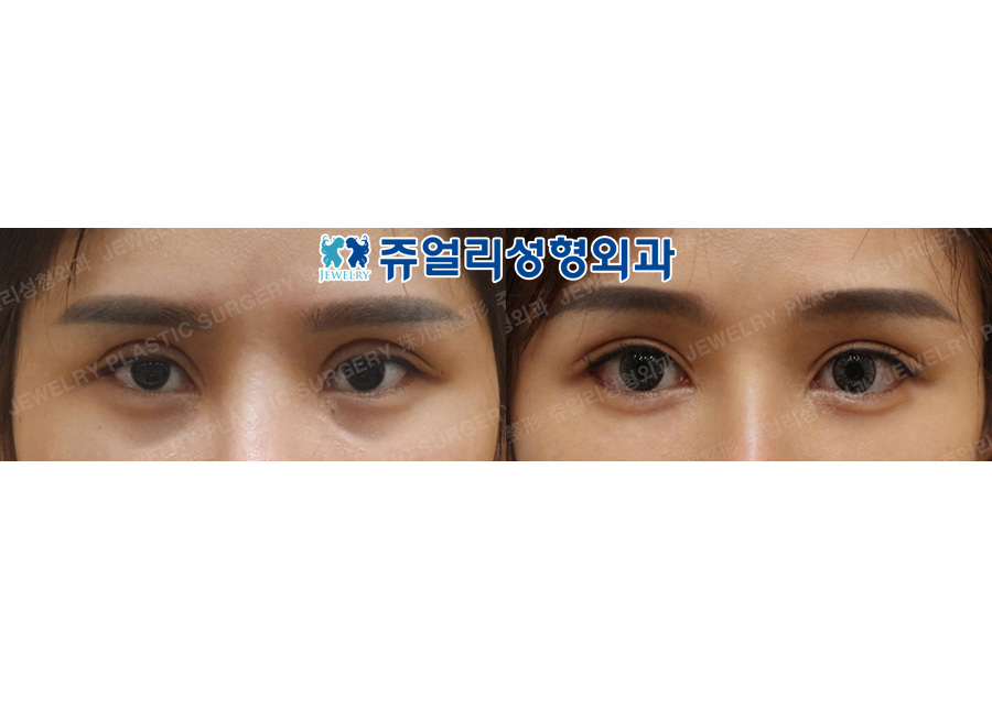 Ptosis, Double Eyelids, Lateral + Lower Lateral Canthoplasty, Fat-Repositioning Transconjunctival (Loveband)