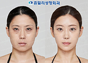 Lower Lateral Canthoplasty, Dark Circle Removal, Fat Grafting, Double Chin Liposuction, Chin Botox