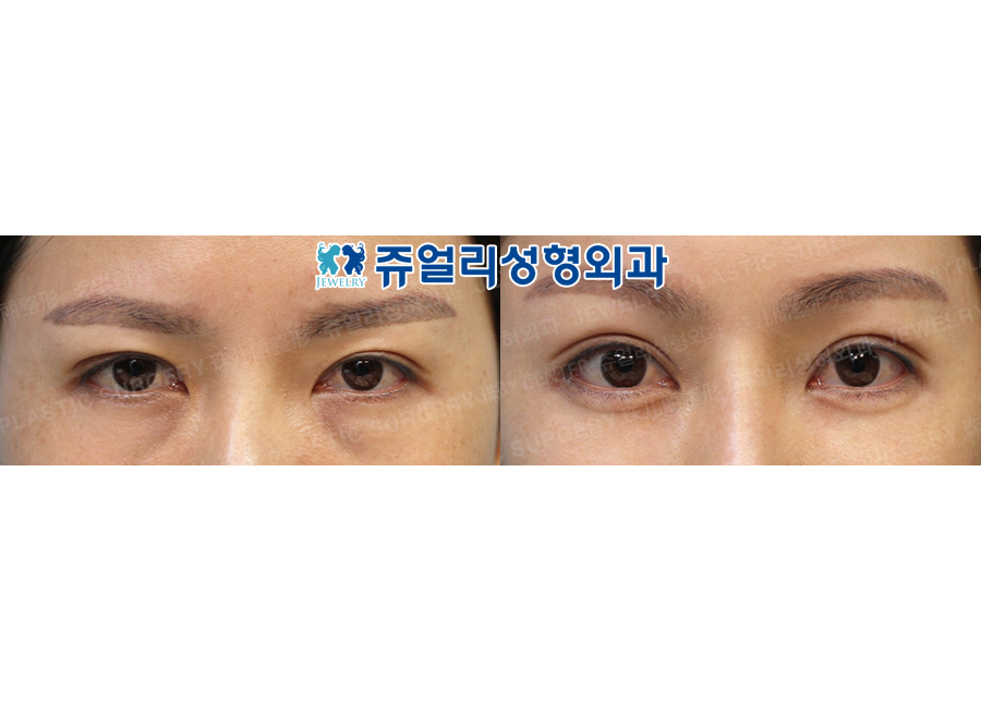 Forehead Lifting, Ptosis, Fat-Repositioning Transconjunctival, Nose Reoperation (Autogenous Rib Cartilage), Fat Grafting, Cheek + Jaw Liposuction, Jaw Muscle Lifting