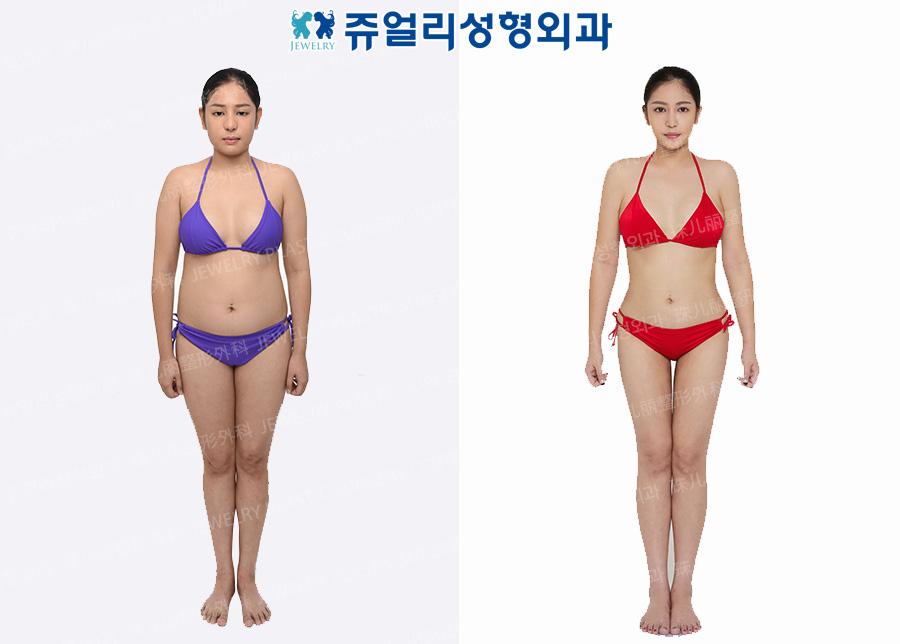 Cheek, Chin + Arm + Abdomen + Flank/Back + Waist + Thigh Liposuction
