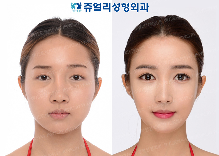Double Eyelids (Ptosis), Lateral Canthoplasty, Dark Circle Removal+Loveband, Nose Reoperation, Fat Grafting, Cheek/Chin Liposuction, Cheekbone Reduction