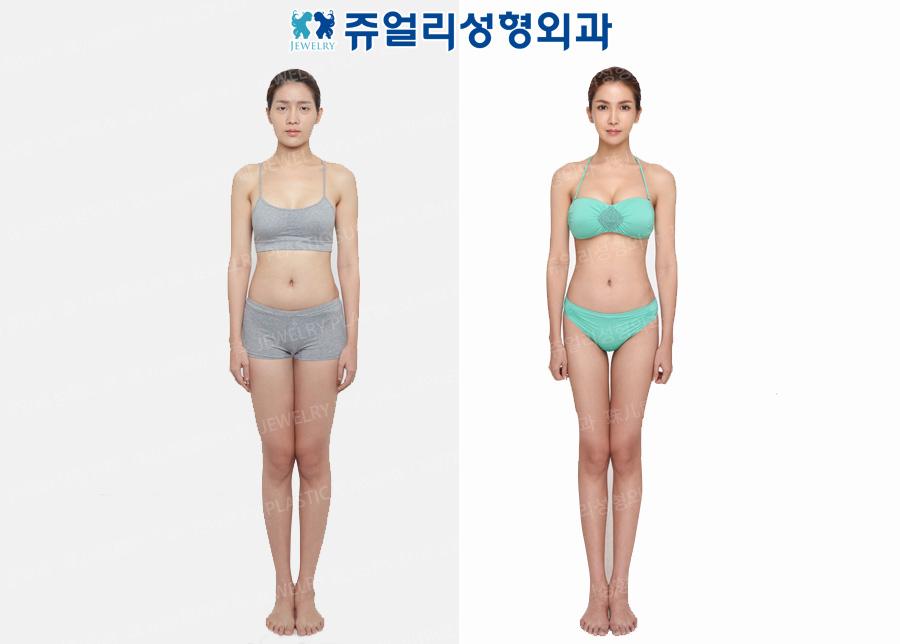 Liposuction (Thigh, Abdomen, Flank), Breast Surgery