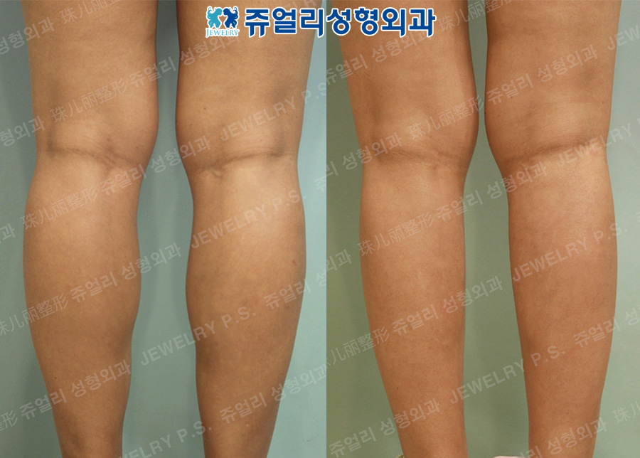 Calf Size Reduction High-Frequency (Nerve Block)