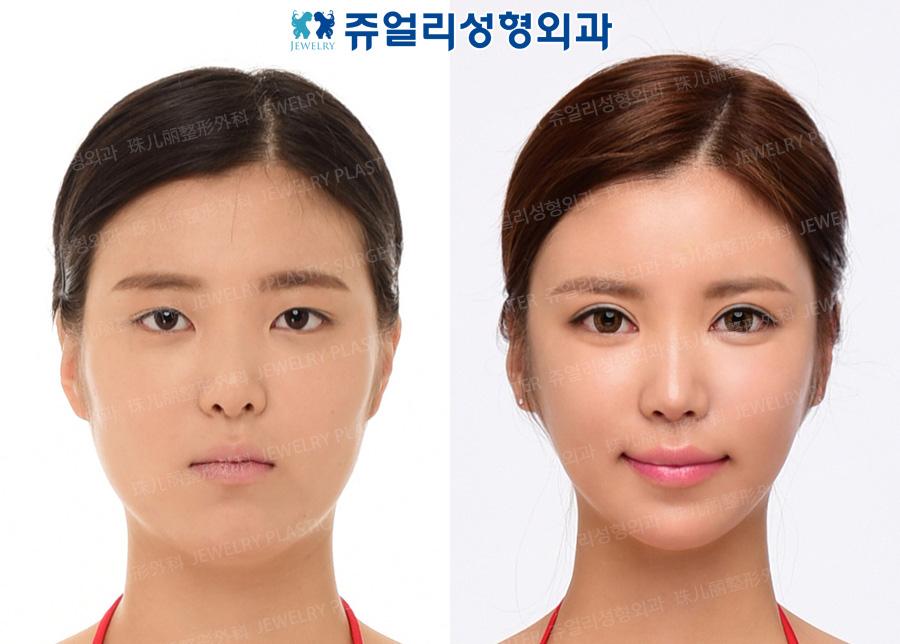 쌍꺼풀절개+앞트임,코재수술(두번째),지방이식,볼턱지방흡입,광대