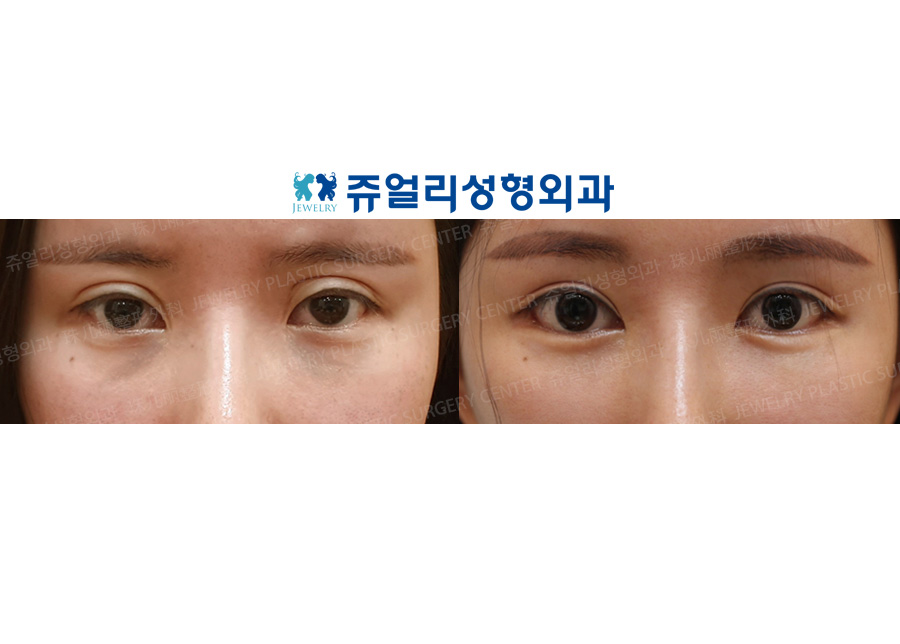 Double Eyelids Reoperation, Epi+Lateral+Lower Lateral Canthoplasty, Fat-Repositioning Transconjunctival