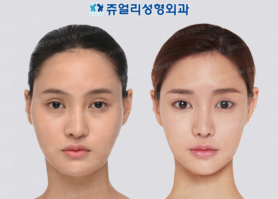 Double Eyelids Reoperation (Ptosis), Lateral Canthoplasty, Lower Lateral Canthoplasty, Dark Circle Removal+Loveband, Nose Reoperation, Fat Grafting, Double Chin Liposuction, Cheekbone Reduction+Square Jaw Reduction+T-osteotomy