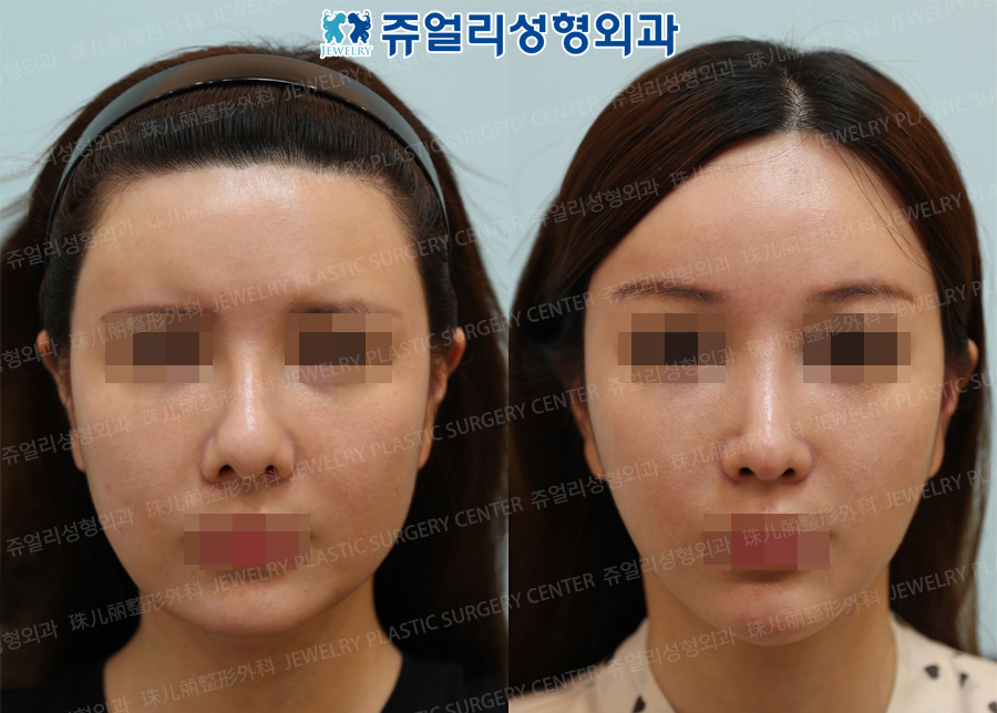 Nose Reoperation, Forehead Lifting, Cheek & Jaw Liposuction, Square Jaw Reduction + Front Chin Advancement