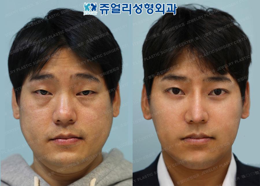 Non-incision Ptosis Correction, Dark Circle, Nose, Cheek & Jaw Liposuction, Jaw Botox