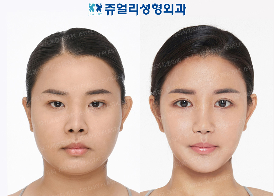Double Eyelids (Non-Incision), Epi/Lateral/Lower Lateral Canthoplasty, Nose Reoperation, Nostrils Reduction, Chin Implant, Cheek/Chin Liposuction, Chin Botox, Smile Line Filler, Buccal Fat Removal