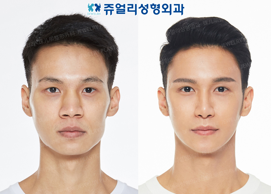 Eyes (Non-Incision, Non-Incision Ptosis Correction+Epicanthoplasty), Nose (Osteotome, Hump Nose, Nostrils Reduction), Cheek Reduction, Front Chin Implant, Square Jaws Botox