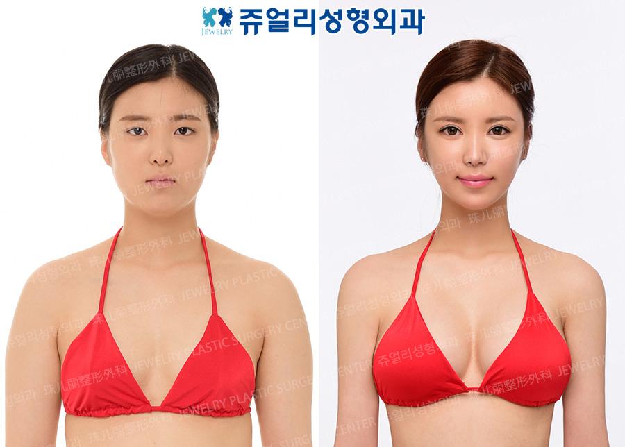 가슴확대,지방흡입(부유방,팔)