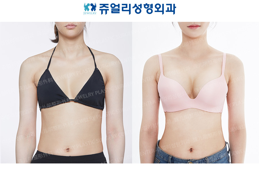 Breast Reoperation