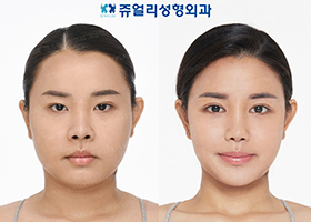 Double Eyelids Surgery (Incision, Epi+Lateral+Lower Lateral Canthoplasty), Nose Reoperation, Nostrils Reduction, Jaw Implant, Cheek + Jaw Liposuction, Jaw Botox, Smile Lines Filler, Buccal Fat Removal (Liposuction)