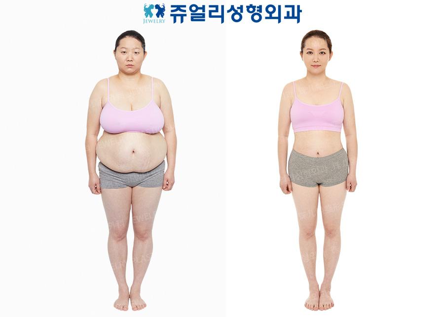 가슴축소/유방거상술+복부성형술+전신코르셋 지방흡입