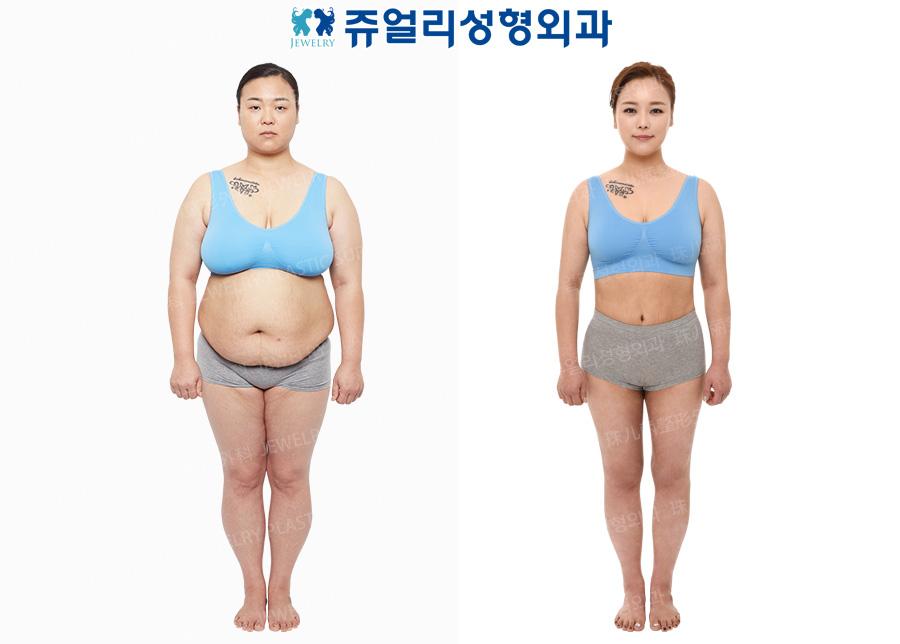 가슴축소/유방거상+복부성형술+전신코르셋지방흡입+종아리신경차단술