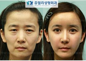 토탈이미지성형 : 눈성형 / 코성형 / 페이스지방이식 / 턱지방흡입