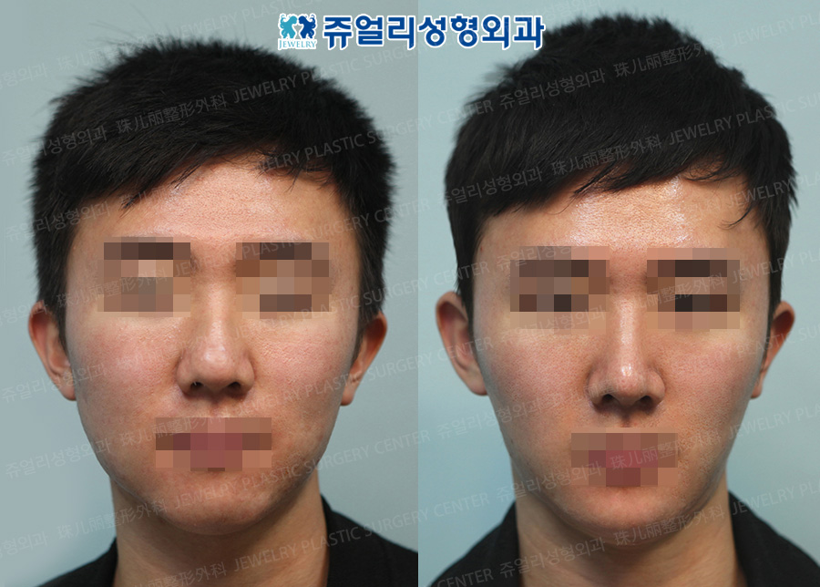 Men Nose Surgery + Chin Implant