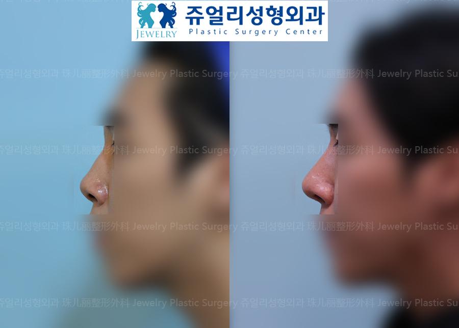 (Men) Nose Surgery - Hump, Upturned Nose
