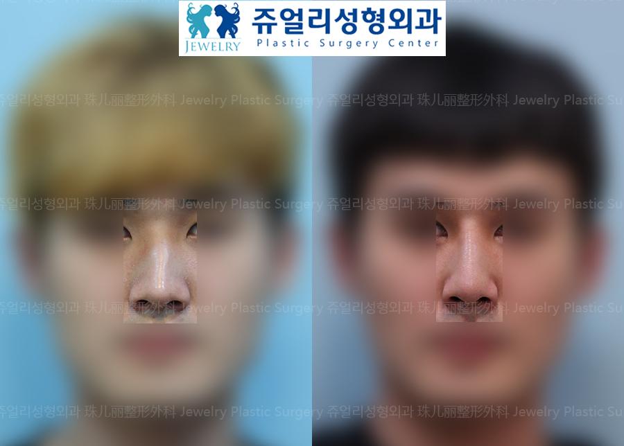(Men) Nose Surgery - Bent Nose