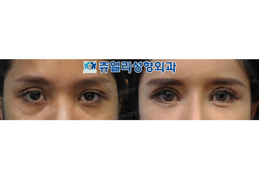 안검하수교정+앞트임+뒤트임+다크써클