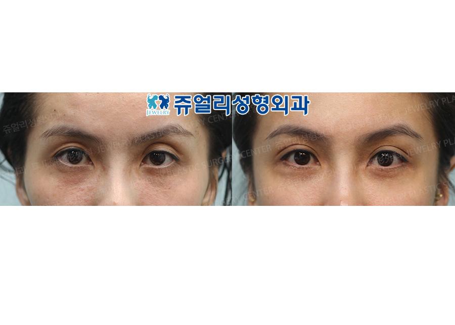 눈두덩이지방이식+쌍꺼풀(매몰법)
