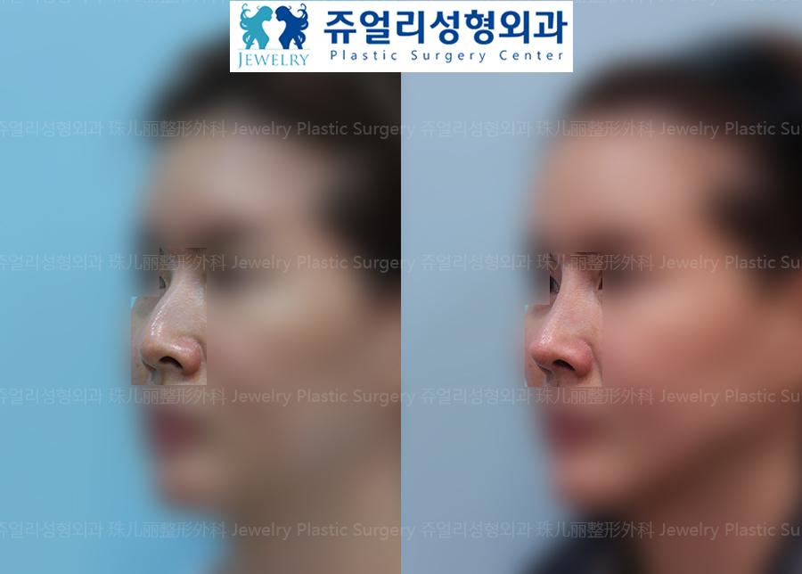 코성형-메부리