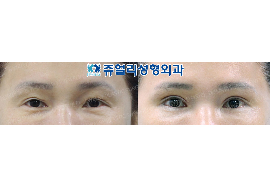 Upper Blepharoplasty (Reoperation)
