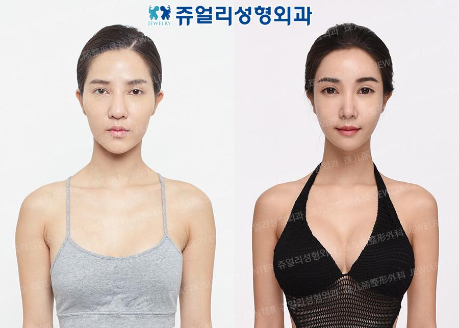 얼굴성형+가슴재수술