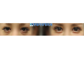 쌍꺼풀 재수술-하안검-애교