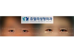 남자눈성형 절개법+뒷트임