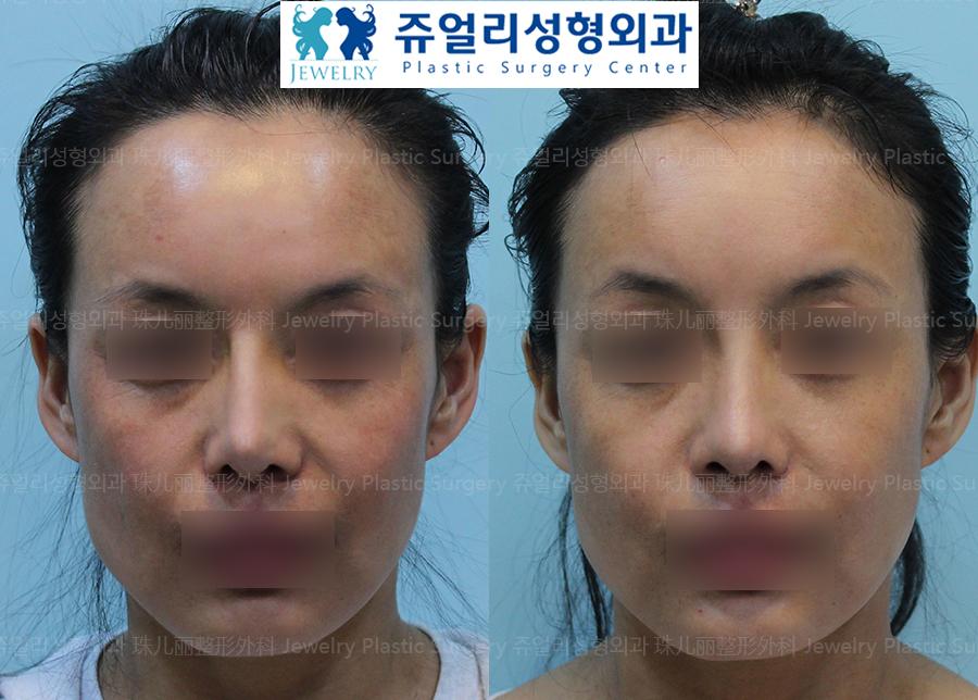 코재수술-얇은피부,휜코(진피)