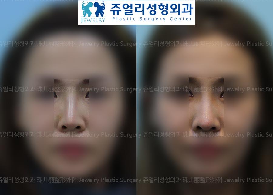 코재수술-얇은피부(측두근막)