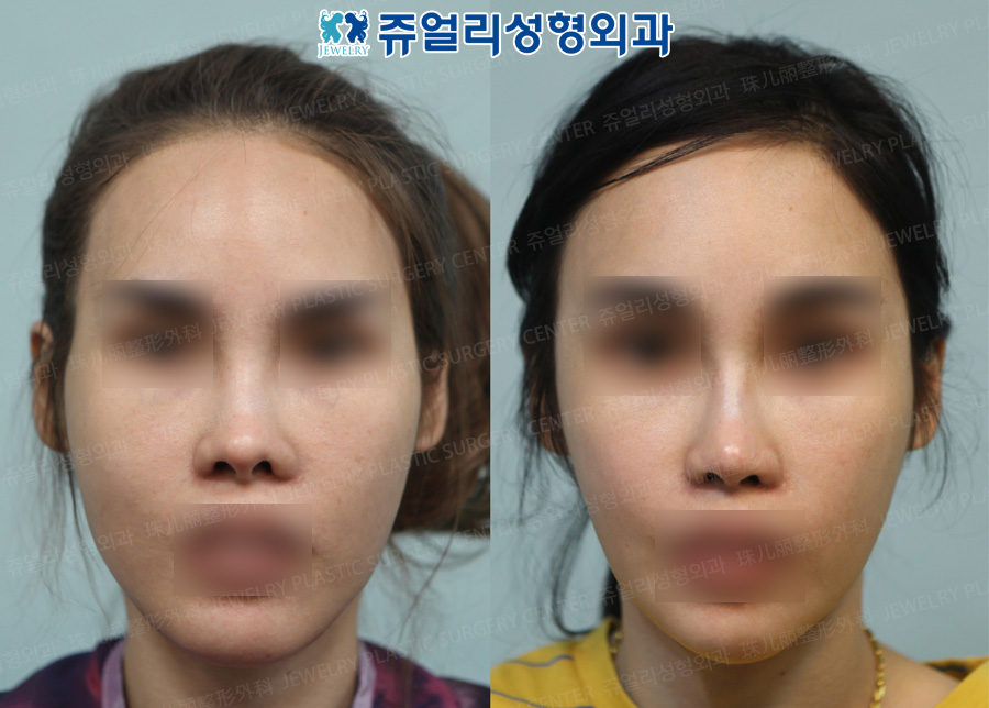 사각턱수술