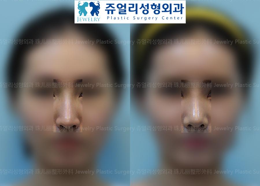 코성형-자가조직 코성형(비중격,측두근막)