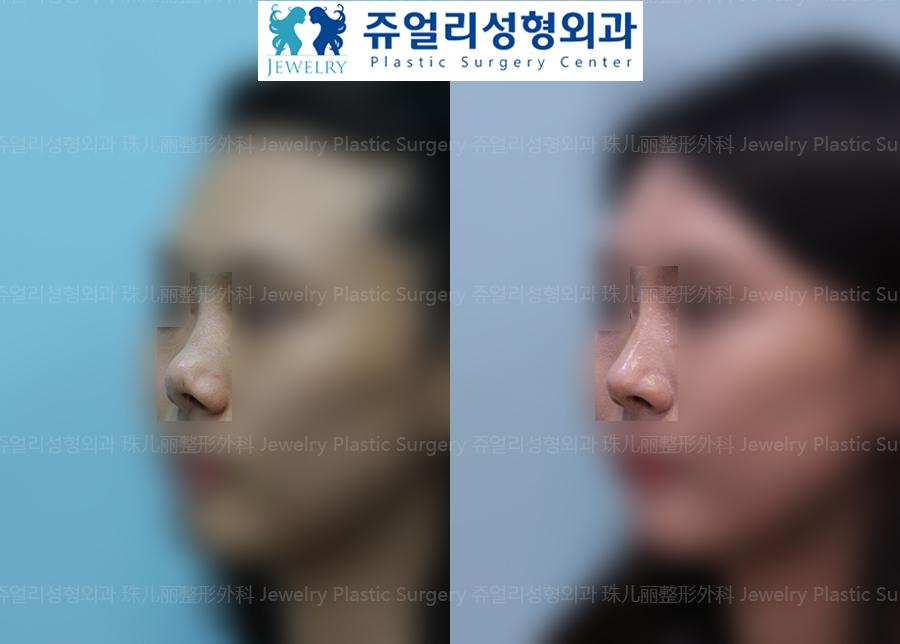 코재수술-자가조직 코성형(비중격,자가진피)