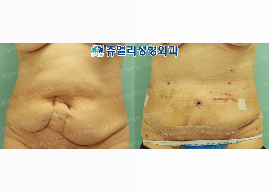 복벽성형술+지방흡입(7일째)