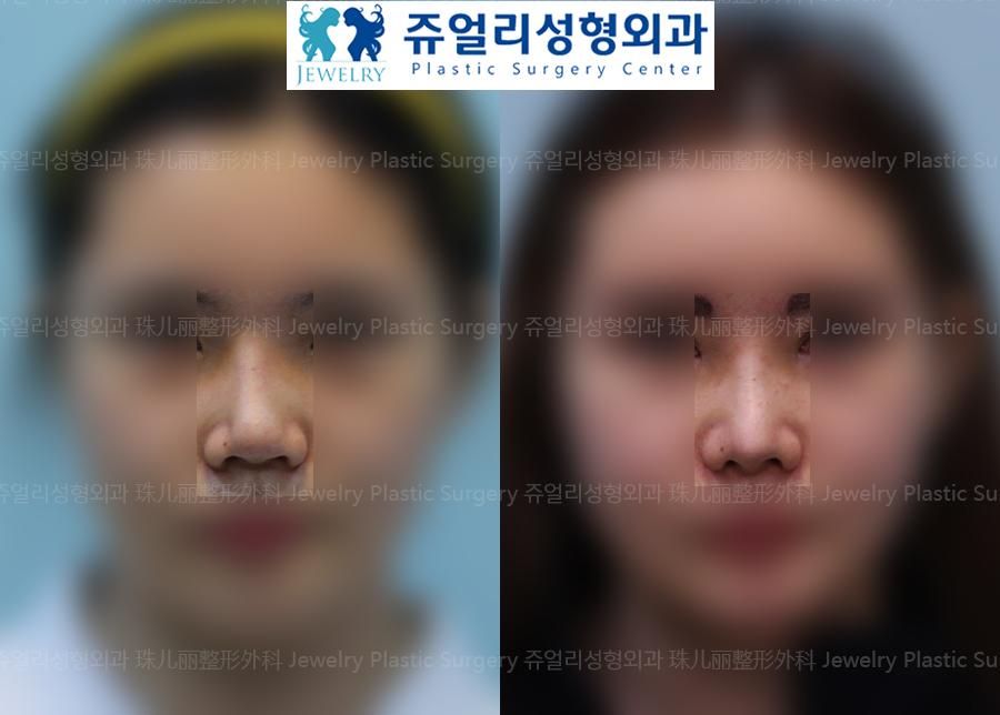 코재수술-복코(비주빼기)