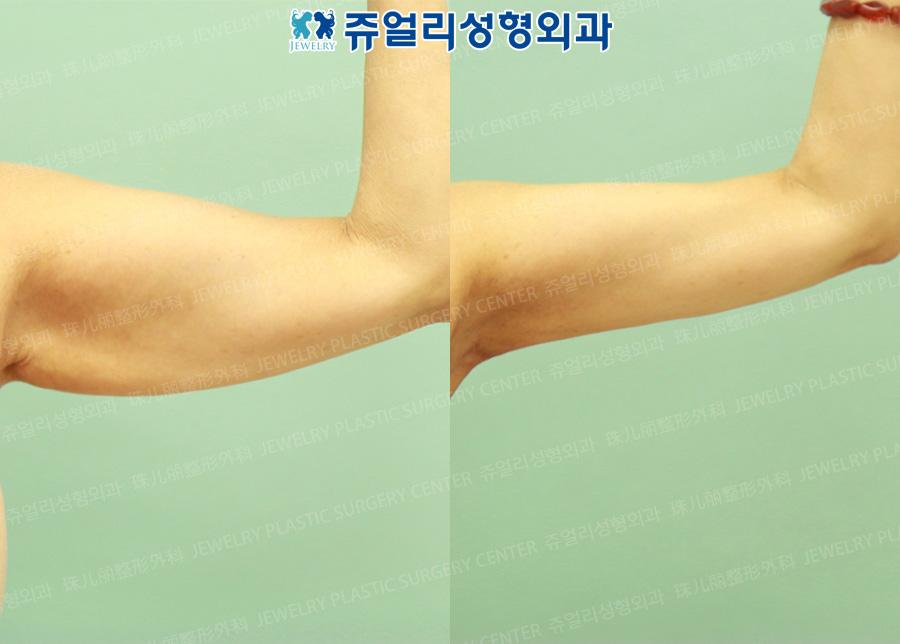 팔 지방흡입(+피부절제술)