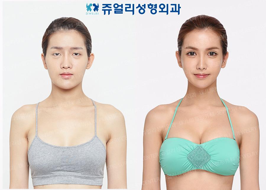 얼굴성형+가슴확대