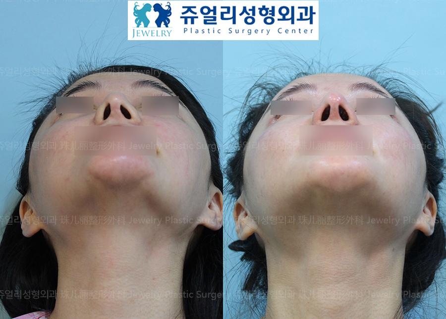 코재수술-휜코(비공비대칭)