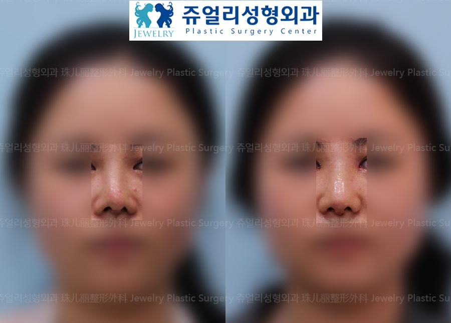 코재수술-휜코(비중격만곡증)