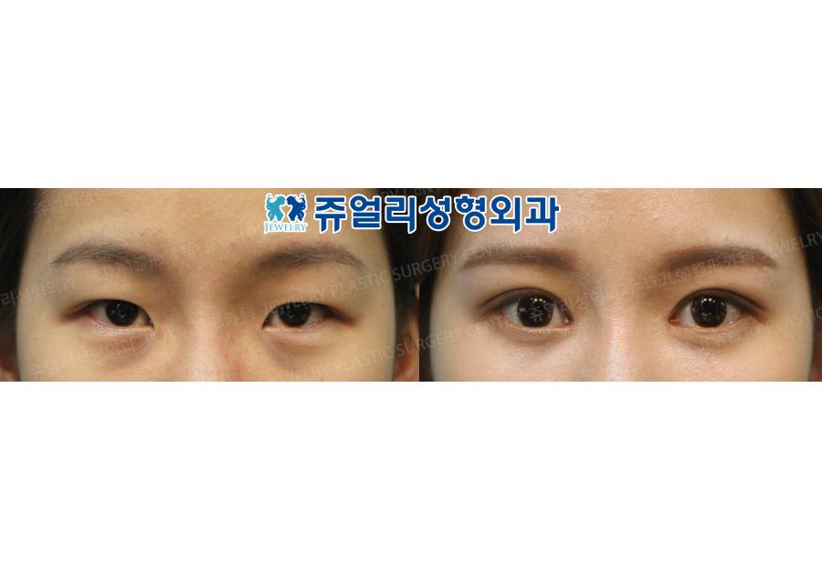 매몰법+앞트임+다크써클(눈밑지방재배치)