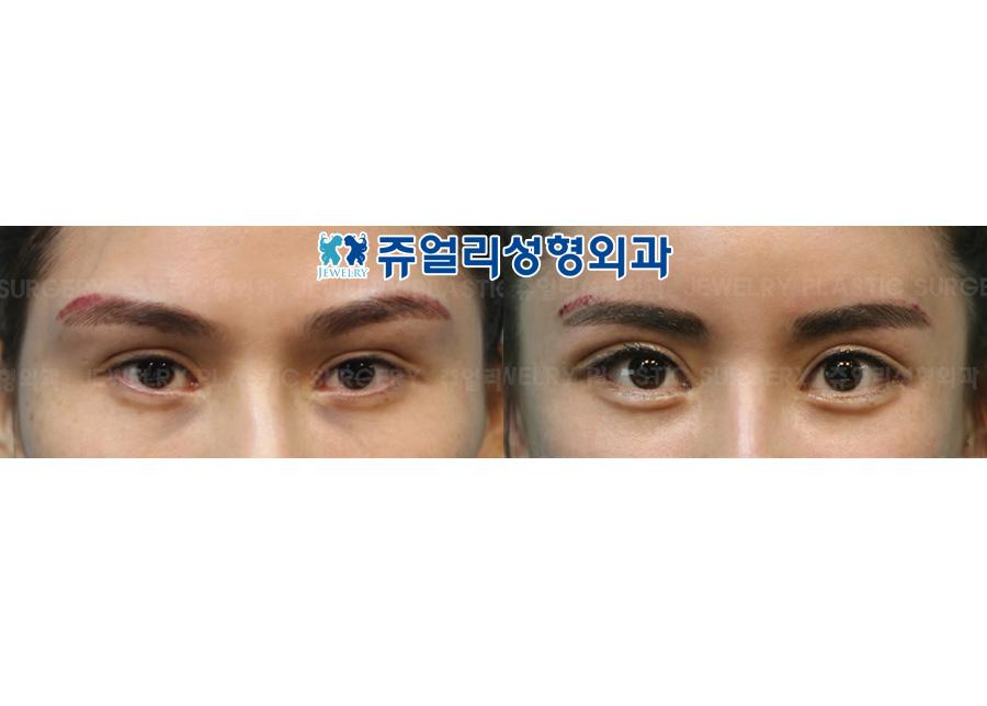 절개재수술+안검하수+뒷트임+눈꼬리내리기+눈밑지방재배치