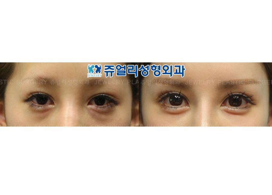 절개재수술+하안검+애교