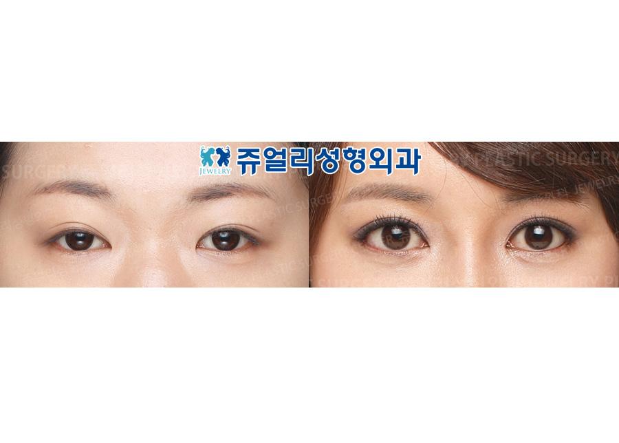 눈매교정+안검하수