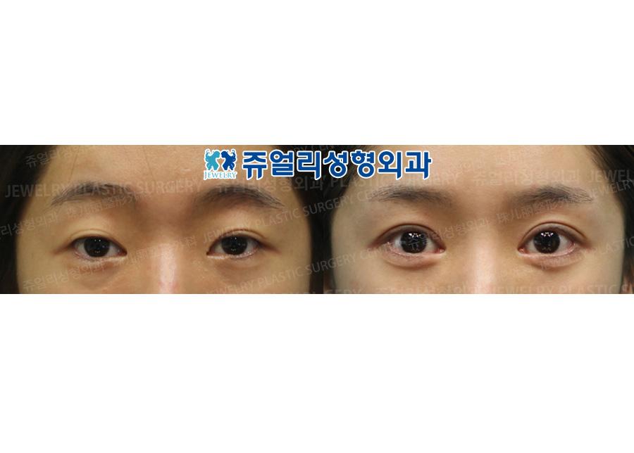 절개재수술+안검하수