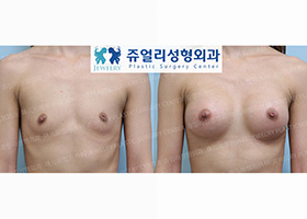 Breast Augmentation + Sunk Nipple Surgery