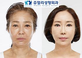 리본리프팅,하안검,눈썹거상,지방이식,코재수술,귀족재수술