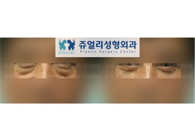 Men (Lower Blepharoplasty)